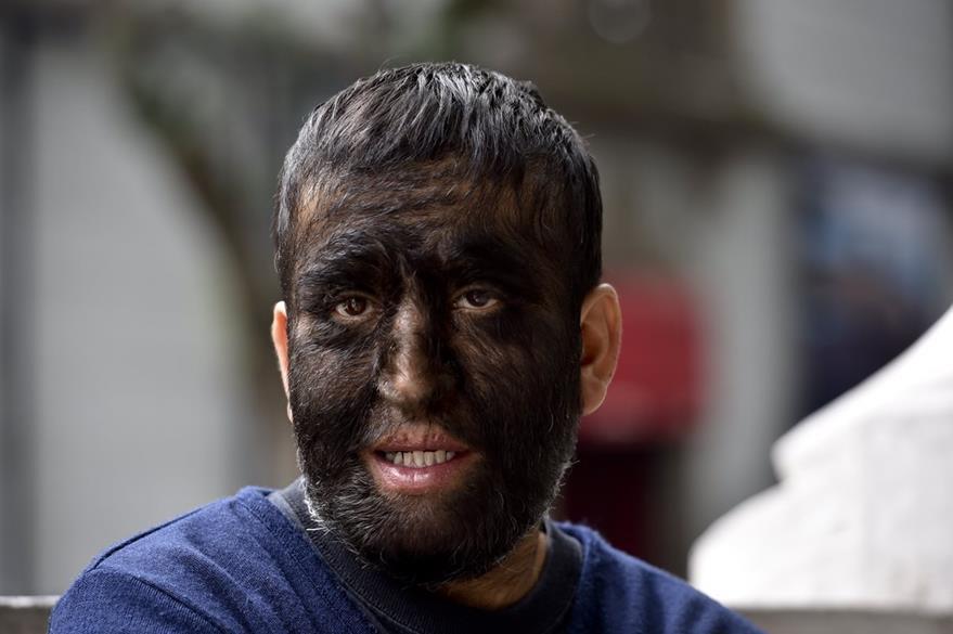 """""""¿Por qué Dios me hizo así?, ¿Por qué no soy como los demás?"""", se preguntaba de chiquito este mexicano. (Foto Prensa Libre: AFP)."""