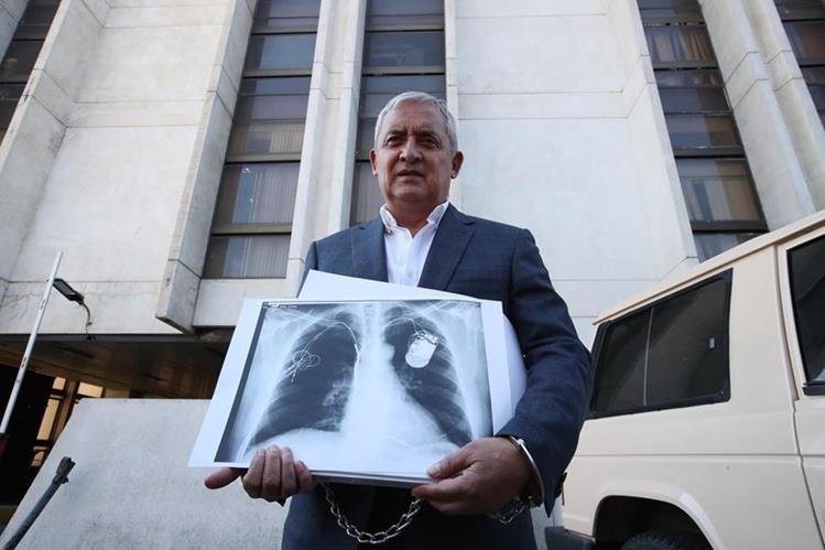 El expresidente Otto Pérez Molina goza de buena salud y tiene un cardiodesfibrilador y un cardioventilador, cuyos funcionamientos son monitoreados constantemente, según el Inacif. (Foto HemerotecaPL).