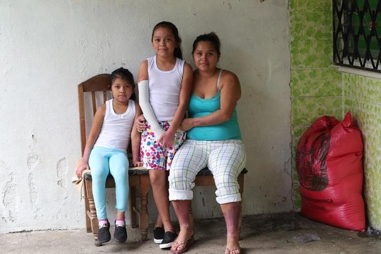 Fabiola y Kristel salieron del hospital la semana pasada. (Foto Prensa Libre: Estuardo Paredes)