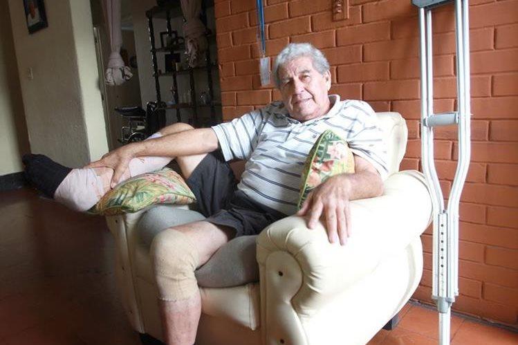 El exguardameta Julio Rodolfo Nixon García sufrió un accidente en su casa y se fracturó el tobillo derecho. (Foto Prensa Libre: Eddy Recinos)