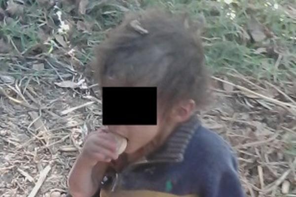 Uno de los menores rescatados que presentaban desnutrición severa en Casillas, Santa Rosa. (Foto Prensa Libre: Oswaldo Cardona)