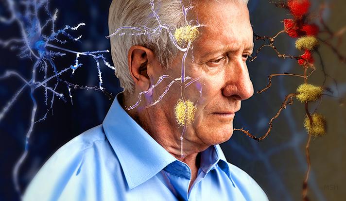 El cerebro de los participantes mostró reacciones inmunes anormales siete años antes del inicio esperado de la demencia.