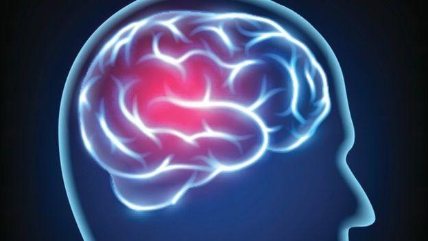 Los dolores de cabeza pueden llegar a ser increíblemente intensos. Es posible que se haya usado la trepanación para intentar aliviarlos. THINKSTOCK