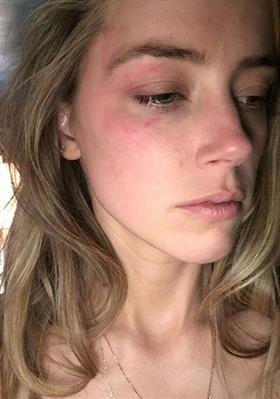 Amber Heard compartió esta foto con un hematoma en el ojo. (Foto Prensa Libre, tomada de TMZ.com)