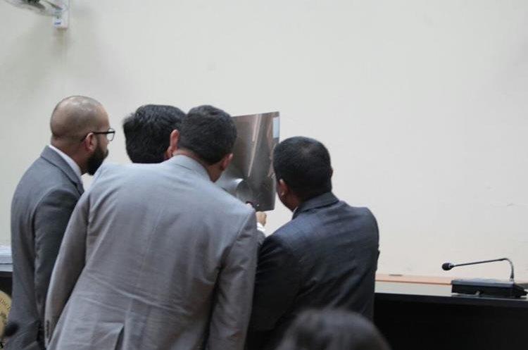 Abogados de Baldetti observan radiografías supuestamente del tórax de la exfuncionaria. (Foto Prensa Libre: Carlos Hernández)