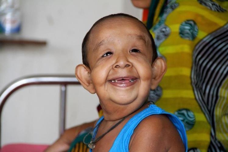 El niño bangladesí Bayezid Shikdar, padece una extraña enfermedad que le hace parecer anciano. (Foto Prensa Libre: AFP).