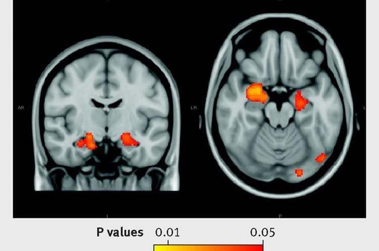 Imagen muestra los daños al tejido cerebral causado por el consumo moderado de alcohol. (Foto Prensa Libre, BMJ)