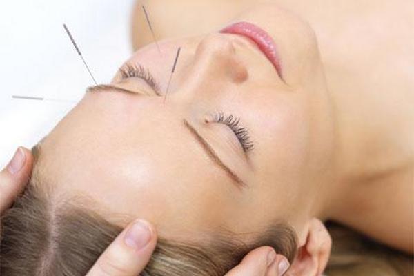 <p>La acupuntura sí ayuda con el dolor</p>