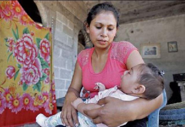Sandy Yamileth, a sus 6 meses de edad y a pesar de tener microcefalia, ya hace varios intentos por gatear, según sus padres.(Foto Prensa Libre: Paulo Raquec)