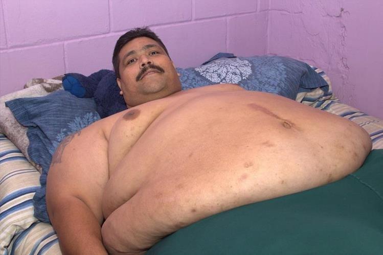 Andrés Moreno, de 37 años, el hombre más obeso del mundo que alcanzó los 435 kilos.(Foto Prensa Libre: EFE).