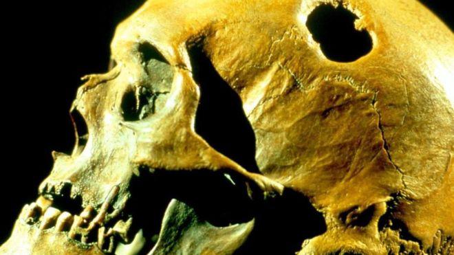 Hay evidencia de que se practicó la trepanación en diversas culturas, hasta por lo menos la Edad Media. Pero las razones no están claras. SCIENCE PHOTO LIBRARY