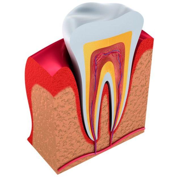 La dentina es el tejido intermedio entre el esmalte y la pulpa (en la ilustración en amarillo). (ALEX-MIT / GETTY)