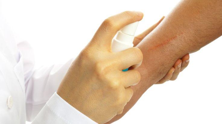 Este tipo de tratamiento puede ser recomendado a personas que quieran eliminar las marcas más oscuras que haya podido dejar una cicatriz. (Getty Images).