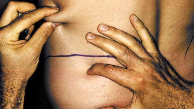 Una de cada cuatro cirugías estéticas entre los hombres de Estados Unidos es una liposucción. GETTY IMAGES