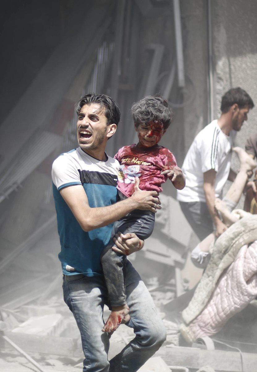 La guerra en Siria obliga a miles a buscar otro destino fuera de África. En la imagen, un hombre carga a su hija que resultó herida después de los bombardeos que ocurren casi a diario. (Foto Prensa Libre: AFP).