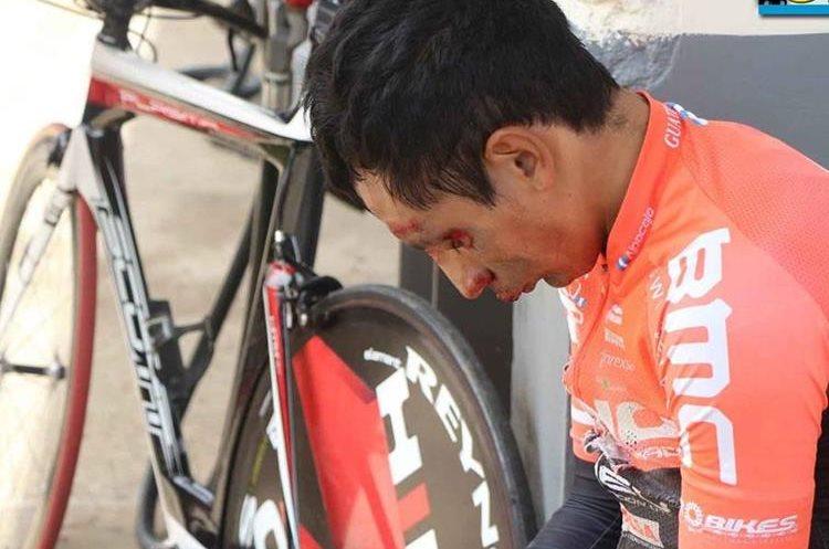 Celso Ajapacajá sufrió múltiples heridas y tuvo que ser trasladado a un centro asistencial. (Foto Prensa Libre: FNC)
