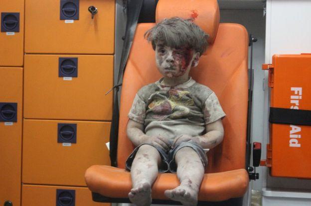 La foto de Omran Daqneesh, de 5 años, fue conocida por el mundo como una de las muestras de la guerra siria que se ha prolongado por cinco años. AFP