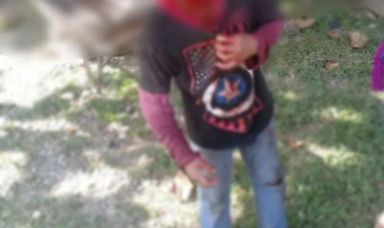 El niño sufrió heridas en el rostro, labio y espalda. (Foto Prensa Libre: Rigoberto Escobar)