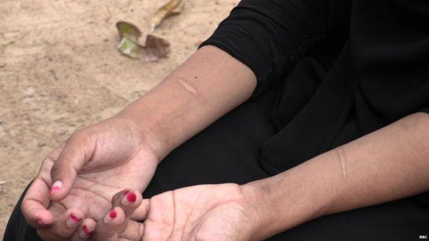 Shafa todavía tiene cicatrices en sus brazos en su intento de suicido para evitar el matrimonio forzado.