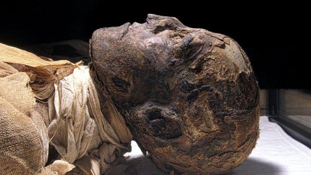 Un cuerpo momificado puede aportar muchísima más información que los restos óseos. SCIENCE PHOTO LIBRARY