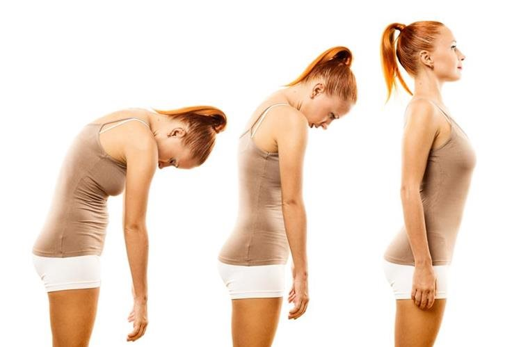 Adoptar mala postura puede ocasionar un alineamiento corporal desbalanceado, tensión sobre los ligamentos y músculos, lesiones, dolor lumbar y crónico y rigidez en las articulaciones.