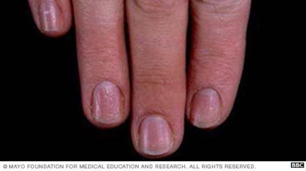 Las uñas picadas son comunes en personas con psoriasis. (Foto, Clínica Mayo)