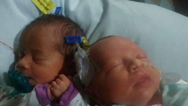 Darla (izquierda) y Delanie nacieron el pasado 17 de junio, poco más de un año después que sus hermanas.DANESHA COUCH