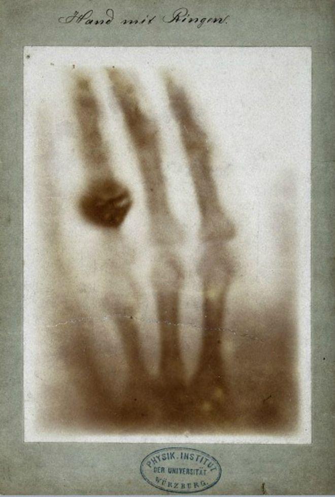 La primera imagen de rayos X provocó inquietud pues parecía una intromisión en la intimidad de la gente. Imagen cortesía del Welcome Trust. WELCOME TRUST