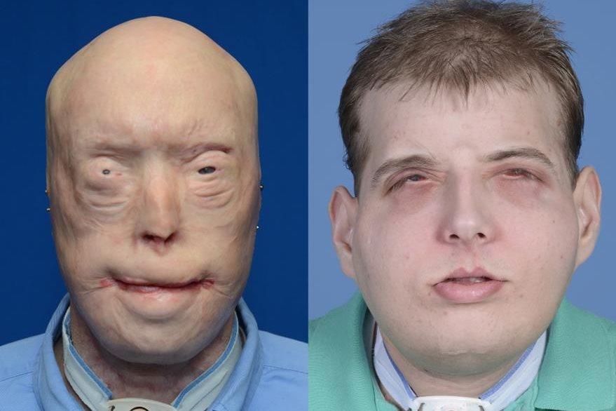 Fotos proporcionadas por la Universidad del Centro Médico Langone de Nueva York que muestran a  Patrick Hardison antes y después de su cirugía de trasplante facial en Nueva York. (Foto Prensa Libre: AP)