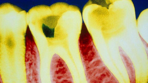 La caries está causada normalmente por la actividad de la placa bacteriana, que genera ácidos que dañan el esmalte de los dientes.