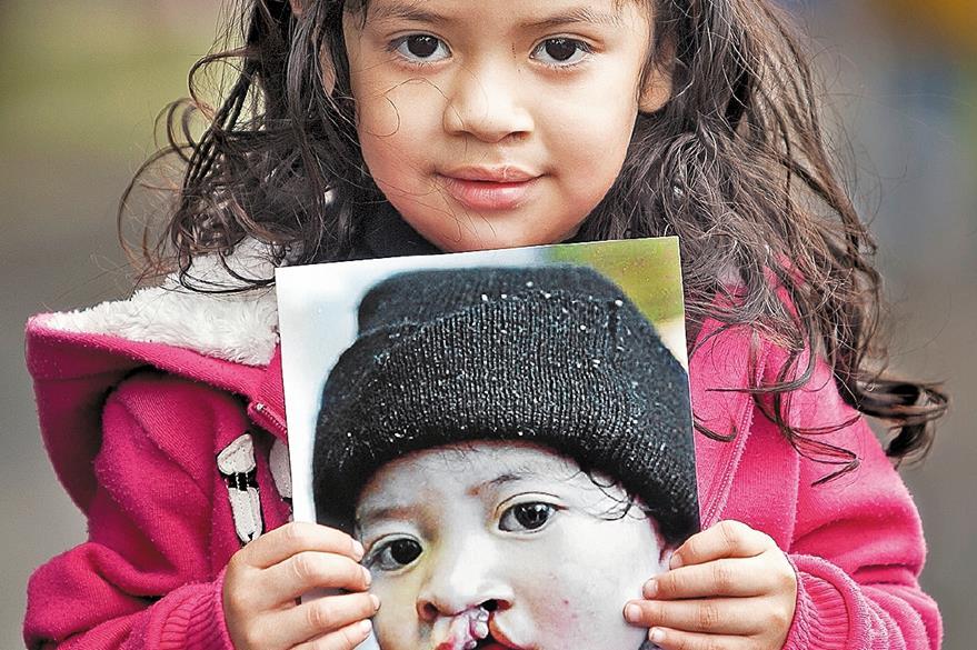 Nicolle Rodríguez fue una de las pequeñas a quien  le devolvieron la sonrisa.