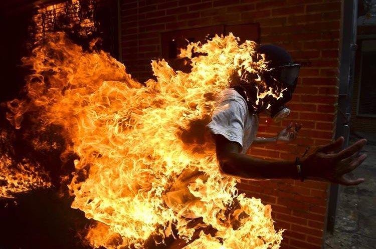Joven arde en llamas por accidente en el  este de Caracas. (Foto Prensa Libre: AFP)