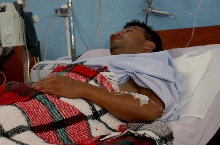 Henry Urias Alva, de 36 años, piloto del bus de Transportes Flor de María, se recupera en el Hospital Regional de Huehuetenango. (Foto Prensa Libre: Mike Castillo)