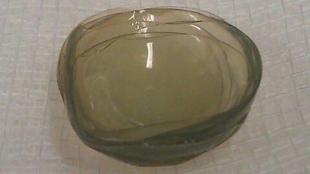 """Un cuerpo extraño resultó ser una masa de 17 lentes contactos """"pegados como mocos"""". (BMJ)."""