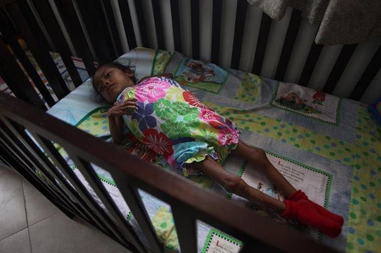 Unos 6 millones de niños sufren desnutrición crónica en la región. (Foto Prensa Libre: Hemeroteca PL)