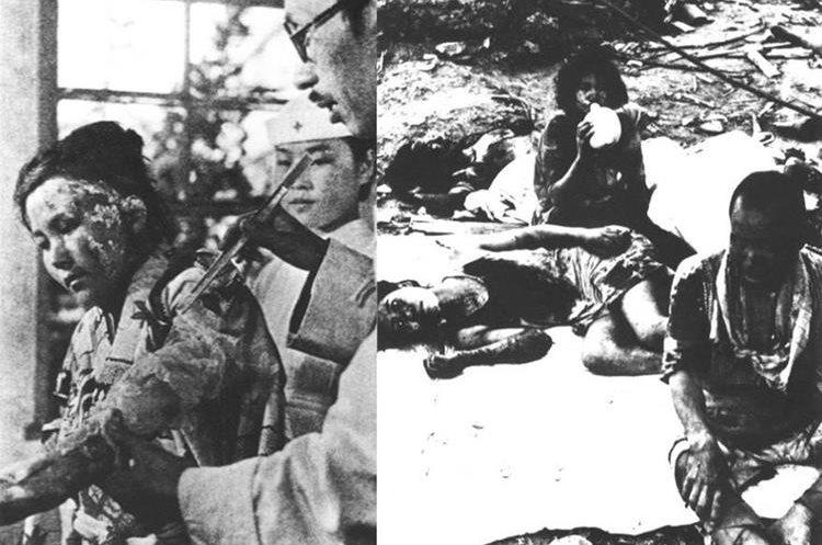 Los efectos secundarios de la radiación después del bombardeo nuclear a Japón cobraron miles de víctimas. (Foto: Hemeroteca PL)