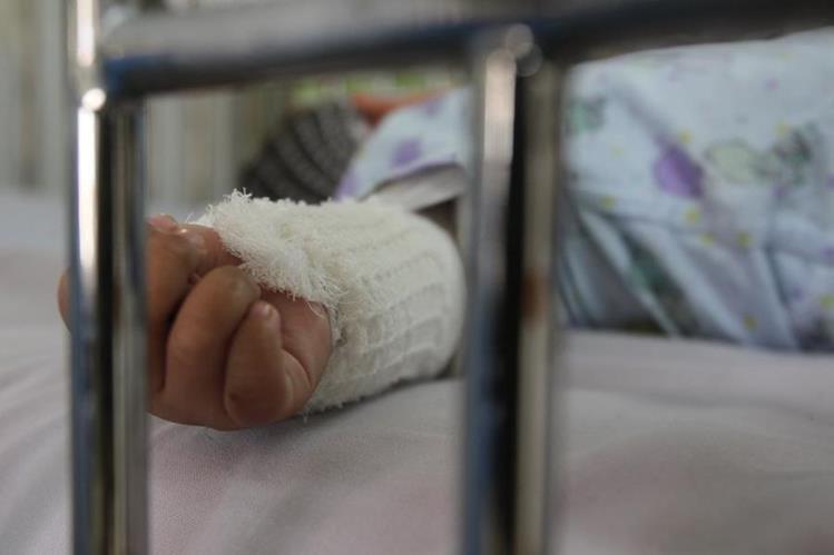 Unidad de quemados del hospital Roosevelt atiende casos de accidentes donde las víctimas son niños. (Foto Prensa Libre: Hemeroteca PL)