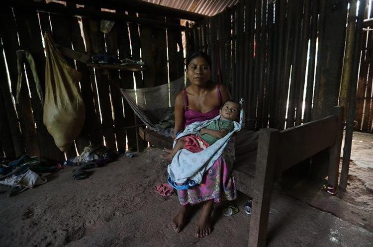 Wilson ElIseo Coc Cucul, de 1 año, tiene desnutrición aguda y está bajo asistencia del sistema de salud. (Foto Prensa Libre: Érick Ávila)