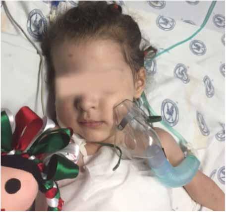 Dafne Verónica García, de 4 años, recibe el primer corazón artifical en una niña mexicana. (Foto Twitter/@T_HIMFG).