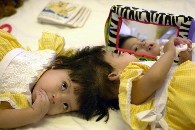 """En 2001, el caso de las gemelas siamesas conocidas como las """"Mariítas"""" se dio a conocer en Guatemala (Foto: Hemeroteca PL)."""