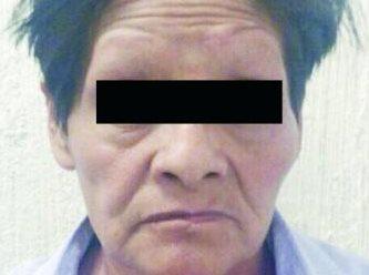 La mujer de 54 años le pegaba constantemente en la cabeza a la menor con un tubo. (Foto Prensa Libre: El Gráfico de México)