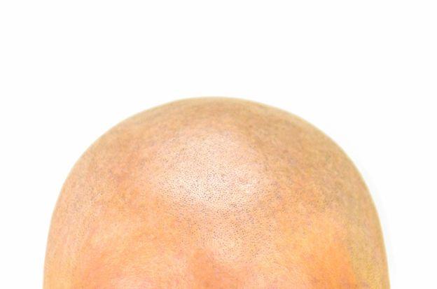 Afeitar la cabeza puede dañar el cuero cabelludo. GETTY IMAGES
