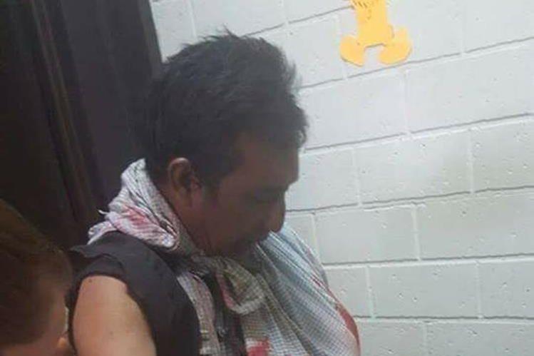 Doroteo Elías fue atacado por un cocodrilo en Las Cruces, Petén. (Foto Prensa Libre: Rigoberto Escobar).