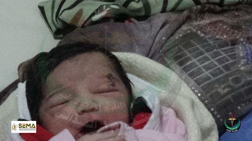 Una niña siria sobrevivió a un ataque aéreo. (Foto Prensa Libre: Syrian Expatriate Medical Association)