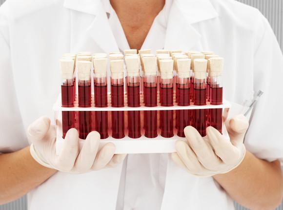 Si el nivel de la proteína troponina en sangre está por debajo de cinco nanogramos por decilitro, hay riesgo muy bajo de sufrir un ataque cardíaco.