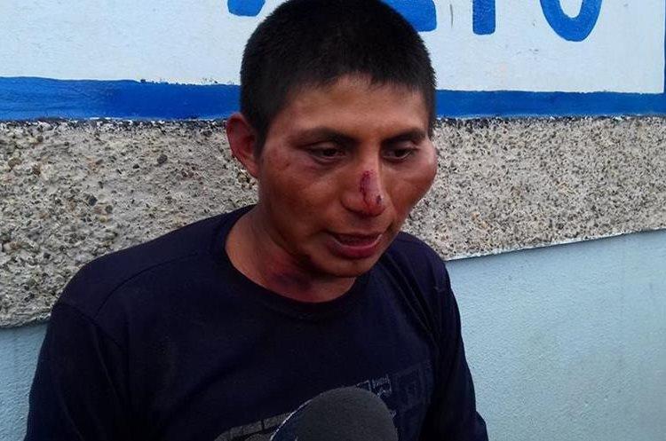David Patzán Ajvix fue detenido por pobladores de la aldea Cerro Alto. (Foto Prensa Libre: Prensa Ciudad Quetzal).