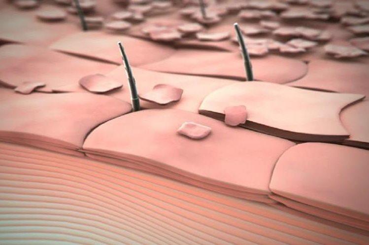 Una producción endógena de especies reactivas de oxígeno en un organismo vivo podía tener efectos fisiológicos estimuladores cutáneos.