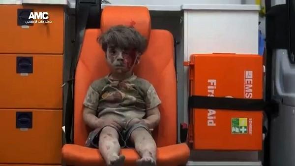 La foto de Omran, ha puesto de nuevo rostro al drama que sufren los civiles en Siria.(AP).