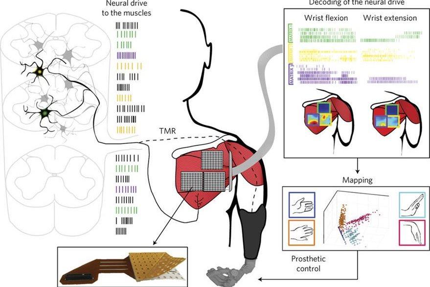 Los nervios son redireccionados con cirugía para amplificar la actividad en los músculos. (Foto Prensa Libre, tomada de Nature)