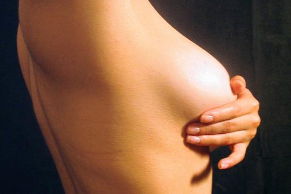 El cáncer de mama puede prevenirse y tratarse (Foto Prensa Libre: Hemeroteca).